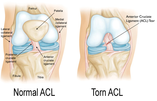 Normal-ACL